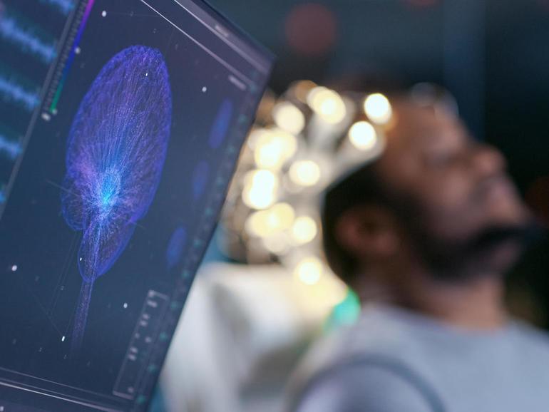 Los investigadores de Data61 de CSIRO desarrollan un casco de inteligencia artificial para prevenir trastornos convulsivos